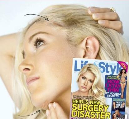 heidi montag chirurgia Heidi Montag: La chirurgia plastica mi ha rovinato la vita