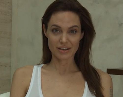 Angelina jolie Angelina Jolie ha la varicella