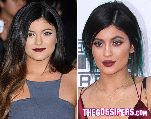 kylie1 Khloe Kardashian Le labbra di Kylie sono finte