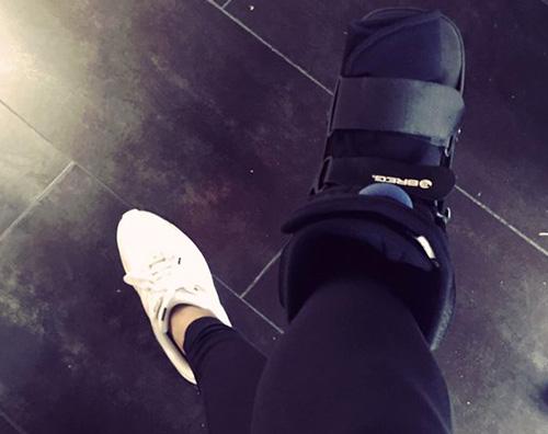 Hailey Baldqin Hailey Baldwin piede rotto... di nuovo!