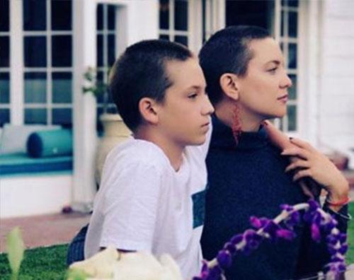 Kate Hudson Kate Hudson, i capelli stanno crescendo