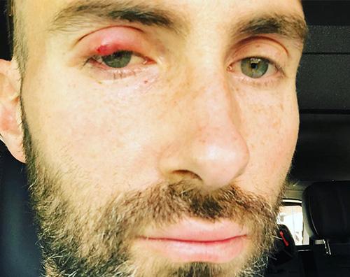 Adam Levin Adam Levine sexy anche con l'occhio gonfio