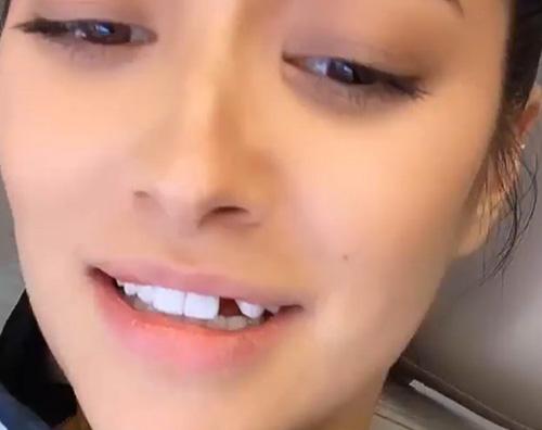 shay Shay Mitchell ha perso un dente